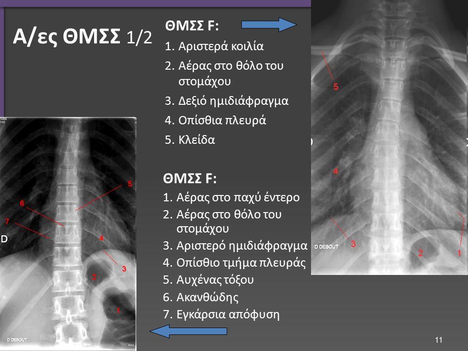 Α/ες ΘΜΣΣ 1/2 ΘΜΣΣ F: 1.Αριστερά κοιλία 2.Αέρας στο θόλο του στομάχου 3.Δεξιό ημιδιάφραγμα 4.Οπίσθια πλευρά 5.Κλείδα ΘΜΣΣ F: 1.Αέρας στο παχύ έντερο 2