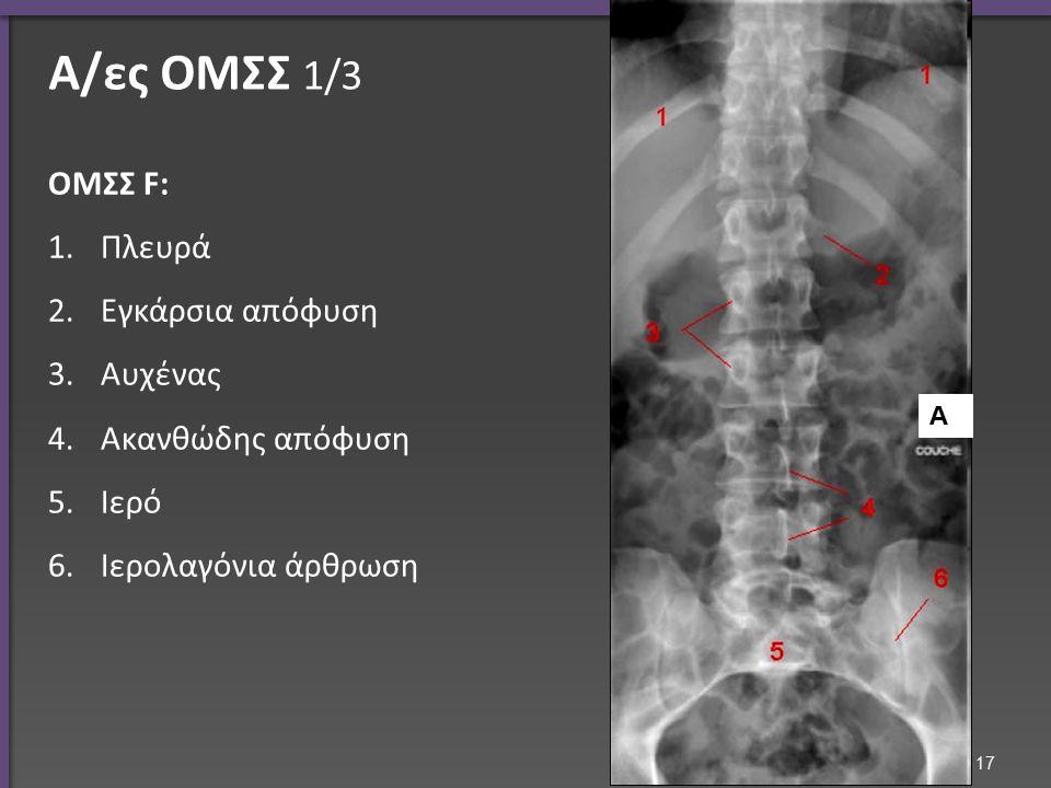 Α/ες ΟΜΣΣ 1/3 ΟΜΣΣ F: 1.Πλευρά 2.Εγκάρσια απόφυση 3.Αυχένας 4.Ακανθώδης απόφυση 5.Ιερό 6.Ιερολαγόνια άρθρωση Α 17