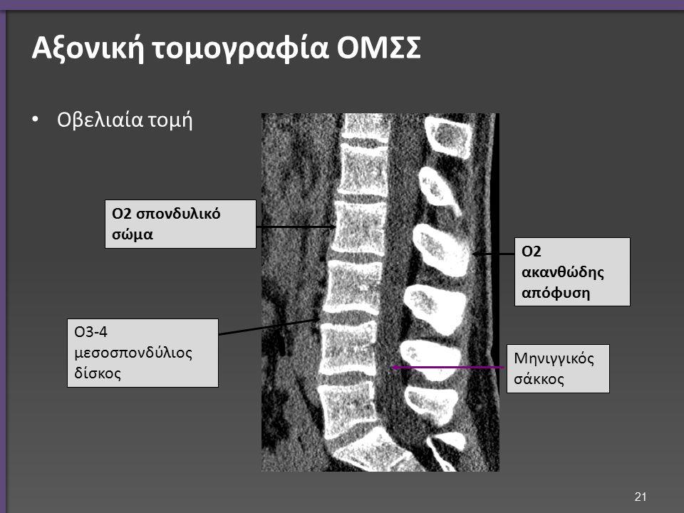 Αξονική τομογραφία ΟΜΣΣ Οβελιαία τομή Ο2 σπονδυλικό σώμα Ο2 ακανθώδης απόφυση Ο3-4 μεσοσπονδύλιος δίσκος Μηνιγγικός σάκκος 21