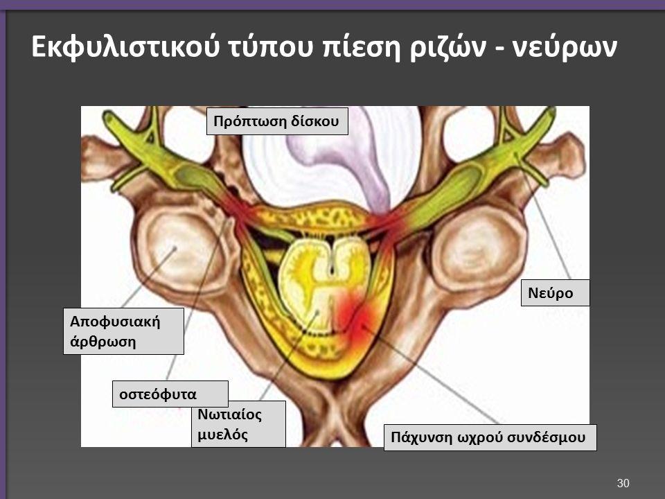 Εκφυλιστικού τύπου πίεση ριζών - νεύρων Πρόπτωση δίσκου Πάχυνση ωχρού συνδέσμου Νεύρο Νωτιαίος μυελός Αποφυσιακή άρθρωση οστεόφυτα 30