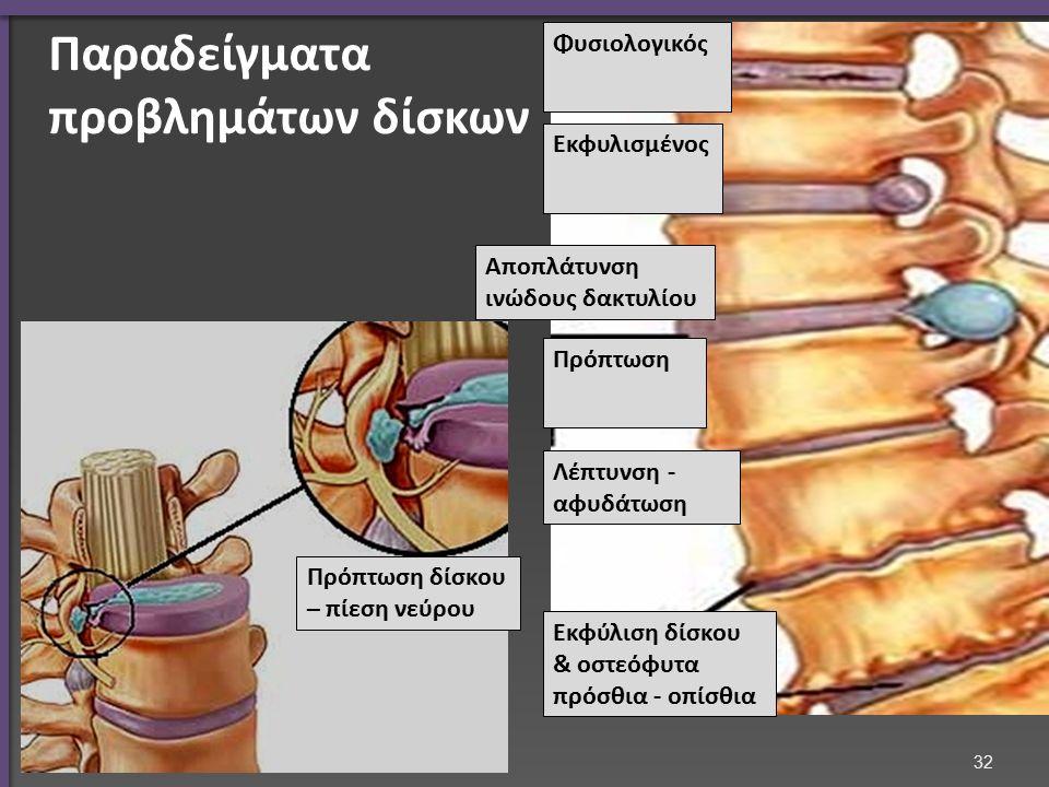 Φυσιολογικός Εκφυλισμένος Αποπλάτυνση ινώδους δακτυλίου Πρόπτωση Λέπτυνση - αφυδάτωση Εκφύλιση δίσκου & οστεόφυτα πρόσθια - οπίσθια Πρόπτωση δίσκου –
