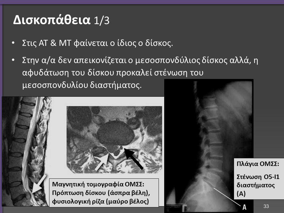 Δισκοπάθεια 1/3 Στις ΑΤ & ΜΤ φαίνεται ο ίδιος ο δίσκος. Στην α/α δεν απεικονίζεται ο μεσοσπονδύλιος δίσκος αλλά, η αφυδάτωση του δίσκου προκαλεί στένω