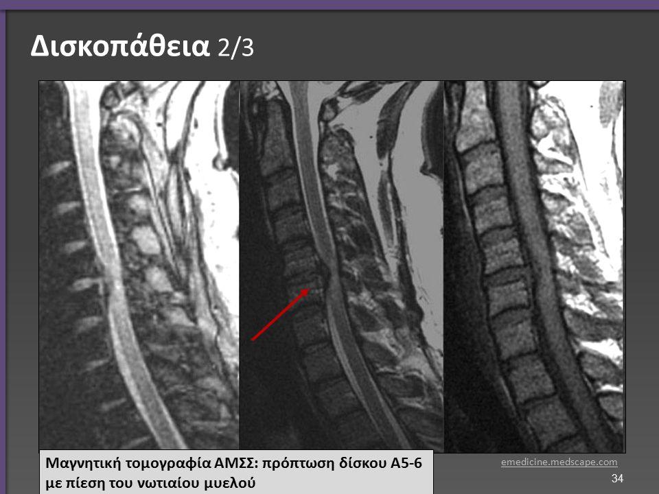Δισκοπάθεια 2/3 Μαγνητική τομογραφία ΑΜΣΣ: πρόπτωση δίσκου Α5-6 με πίεση του νωτιαίου μυελού emedicine.medscape.com 34