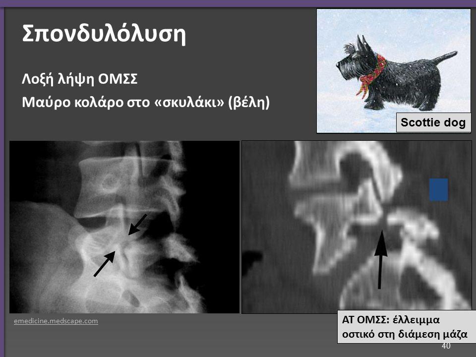Σπονδυλόλυση Λοξή λήψη ΟΜΣΣ Μαύρο κολάρο στο «σκυλάκι» (βέλη) ΑΤ ΟΜΣΣ: έλλειμμα οστικό στη διάμεση μάζα emedicine.medscape.com Scottie dog 40