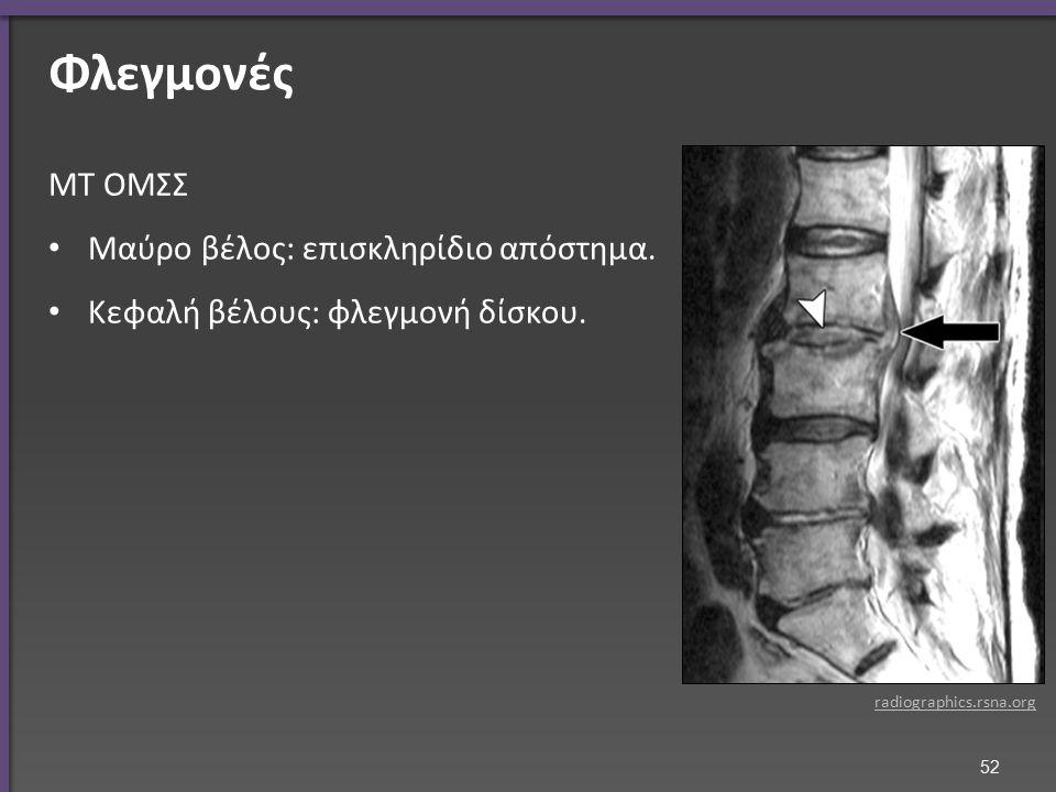 Φλεγμονές ΜΤ ΟΜΣΣ Μαύρο βέλος: επισκληρίδιο απόστημα. Κεφαλή βέλους: φλεγμονή δίσκου. radiographics.rsna.org 52
