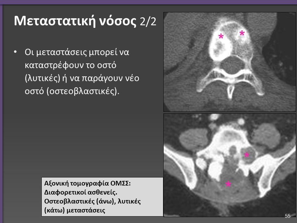 Μεταστατική νόσος 2/2 Οι μεταστάσεις μπορεί να καταστρέφουν το οστό (λυτικές) ή να παράγουν νέο οστό (οστεοβλαστικές). Αξονική τομογραφία ΟΜΣΣ: Διαφορ