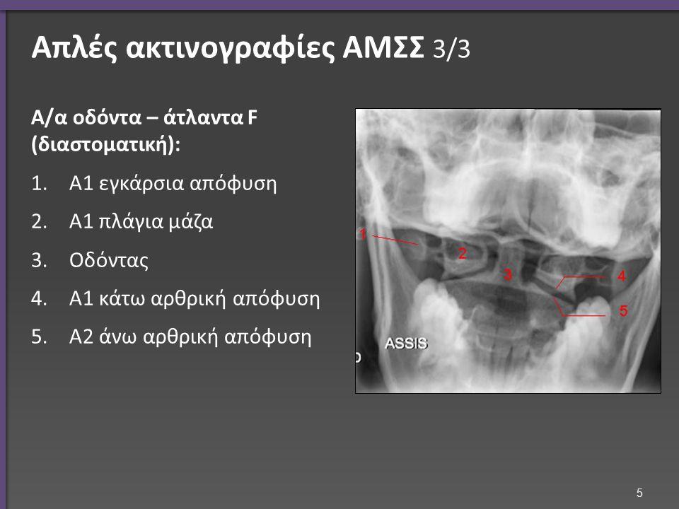 Σκολίωση 2/5 Αξονική τομογραφία o Στροφή του σπονδύλου Μαγνητική τομογραφία o Παραμόρφωση μεσοσπονδυλίων δίσκων 26