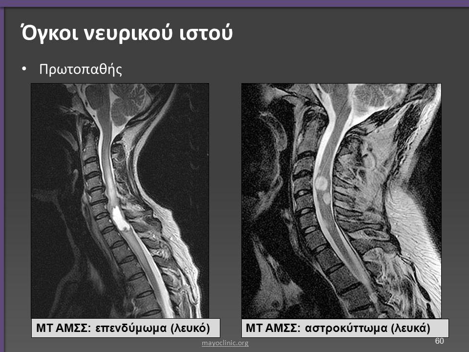 Όγκοι νευρικού ιστού Πρωτοπαθής ΜΤ ΑΜΣΣ: επενδύμωμα (λευκό) ΜΤ ΑΜΣΣ: αστροκύττωμα (λευκά) mayoclinic.org 60