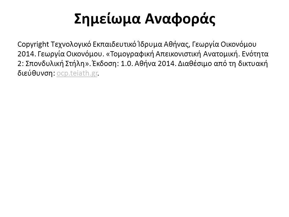 Σημείωμα Αναφοράς Copyright Τεχνολογικό Εκπαιδευτικό Ίδρυμα Αθήνας, Γεωργία Οικονόμου 2014. Γεωργία Οικονόμου. «Τομογραφική Απεικονιστική Ανατομική. Ε