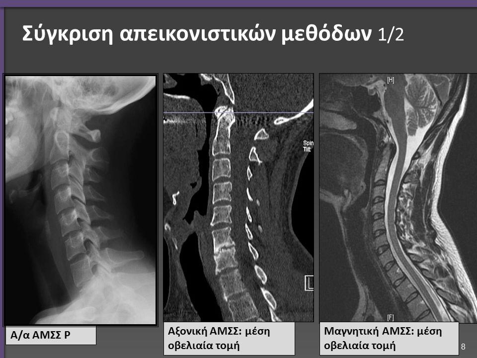 Σύγκριση απεικονιστικών μεθόδων 1/2 Α/α ΑΜΣΣ Ρ Αξονική ΑΜΣΣ: μέση οβελιαία τομή Μαγνητική ΑΜΣΣ: μέση οβελιαία τομή 8