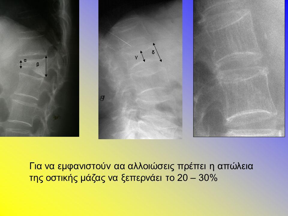 γ δ α β Για να εμφανιστούν αα αλλοιώσεις πρέπει η απώλεια της οστικής μάζας να ξεπερνάει το 20 – 30%