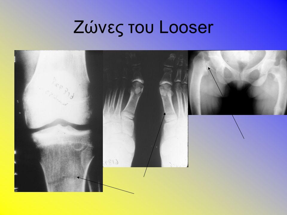 Ζώνες του Looser