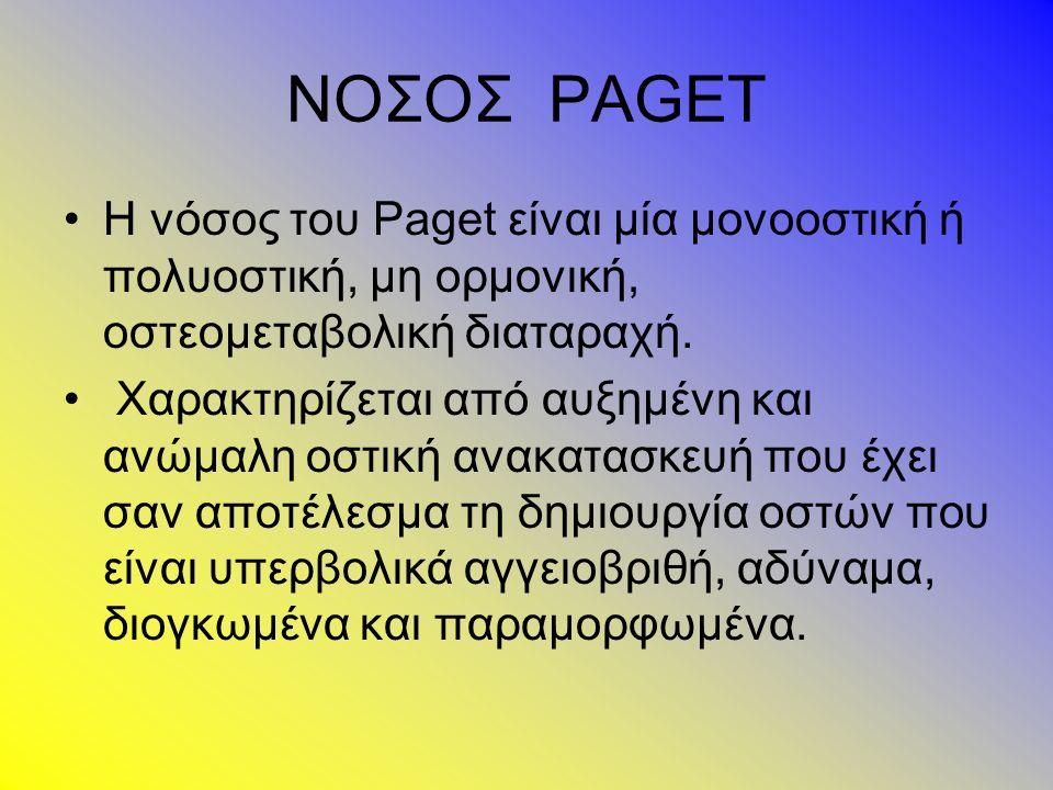 ΝΟΣΟΣ PAGET Η νόσος του Paget είναι μία μονοοστική ή πολυοστική, μη ορμονική, οστεομεταβολική διαταραχή.