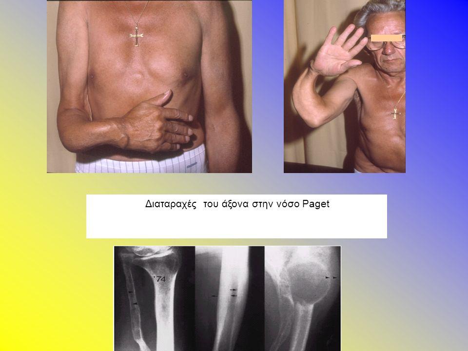 Διαταραχές του άξονα στην νόσο Paget