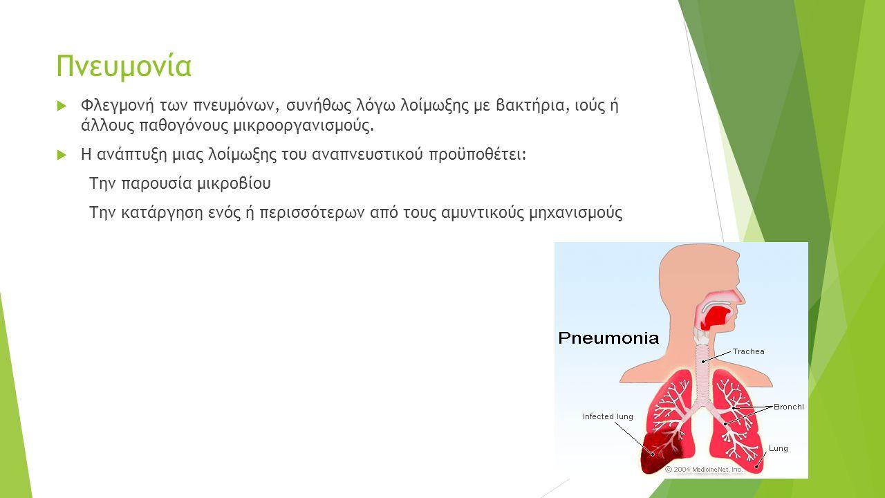 Πνευμονία  Φλεγμονή των πνευμόνων, συνήθως λόγω λοίμωξης με βακτήρια, ιούς ή άλλους παθογόνους μικροοργανισμούς.