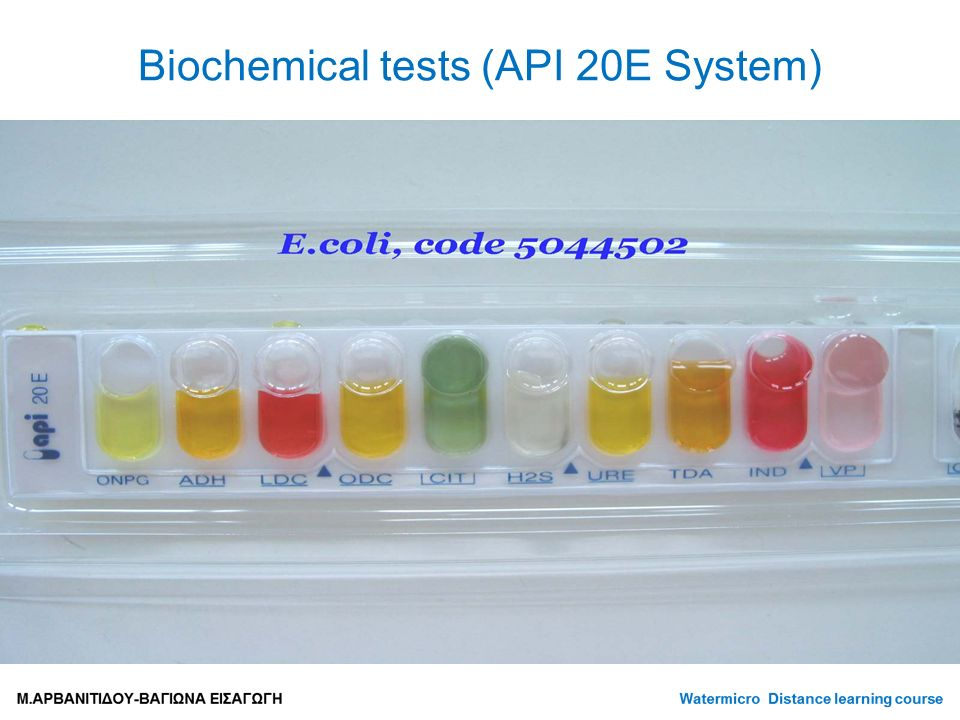 Biochemical tests (API 20E System)