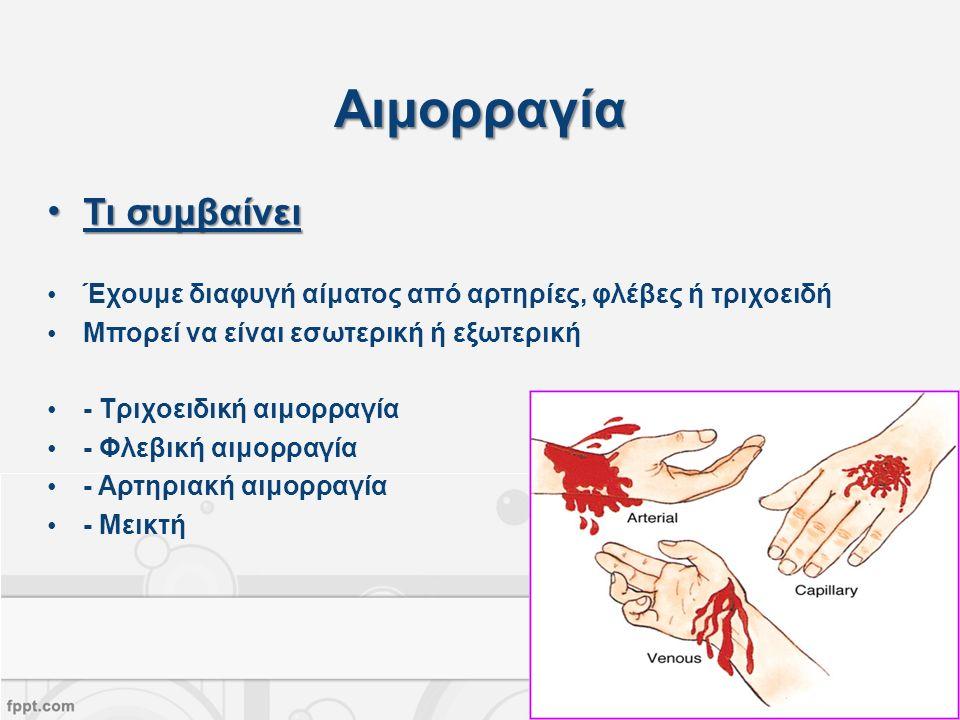 Αιμορραγία Τι συμβαίνειΤι συμβαίνει Έχουμε διαφυγή αίματος από αρτηρίες, φλέβες ή τριχοειδή Μπορεί να είναι εσωτερική ή εξωτερική - Τριχοειδική αιμορραγία - Φλεβική αιμορραγία - Αρτηριακή αιμορραγία - Μεικτή