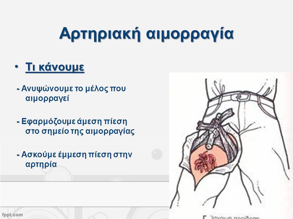 Αρτηριακή αιμορραγία Τι κάνουμεΤι κάνουμε - - Ανυψώνουμε το μέλος που αιμορραγεί - - Εφαρμόζουμε άμεση πίεση στο σημείο της αιμορραγίας - - Ασκούμε έμμεση πίεση στην αρτηρία