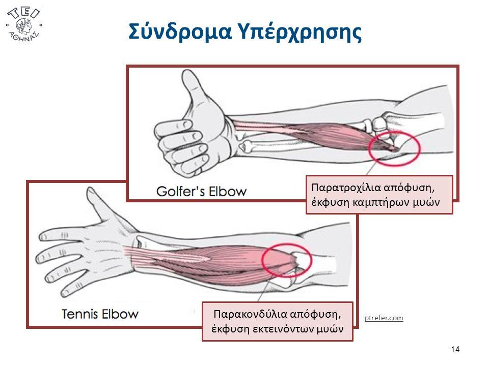 Σύνδρομα Υπέρχρησης 14 Παρατροχίλια απόφυση, έκφυση καμπτήρων μυών Παρακονδύλια απόφυση, έκφυση εκτεινόντων μυών ptrefer.com