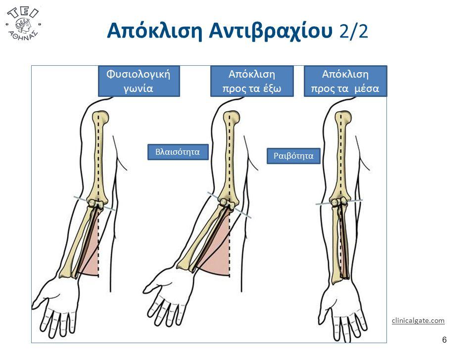 Απόκλιση Αντιβραχίου 2/2 clinicalgate.com 6 Φυσιολογική γωνία Βλαισότητα Απόκλιση προς τα έξω Απόκλιση προς τα μέσα Ραιβότητα