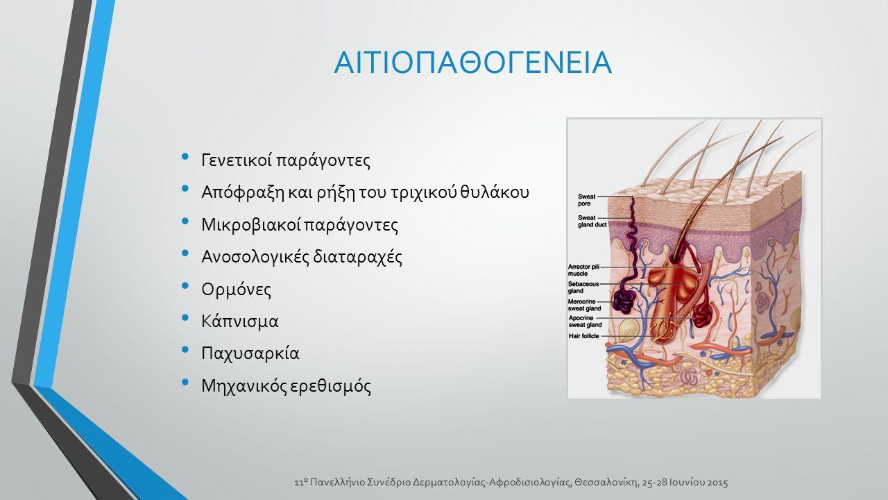 ΑΙΤΙΟΠΑΘΟΓΕΝΕΙΑ Γενετικοί παράγοντες Απόφραξη και ρήξη του τριχικού θυλάκου Μικροβιακοί παράγοντες Ανοσολογικές διαταραχές Ορμόνες Κάπνισμα Παχυσαρκία