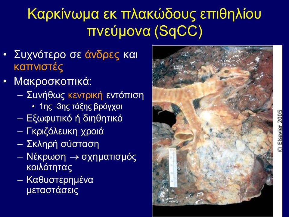Καρκίνωμα εκ πλακώδους επιθηλίου πνεύμονα (SqCC) Συχνότερο σε άνδρες και καπνιστές Μακροσκοπικά: –Συνήθως κεντρική εντόπιση 1ης -3ης τάξης βρόγχοι –Εξ