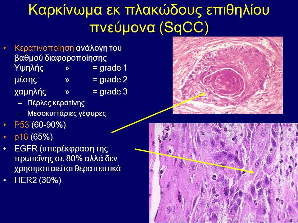 Καρκίνωμα εκ πλακώδους επιθηλίου πνεύμονα (SqCC) Κερατινοποίηση ανάλογη του βαθμού διαφοροποίησης Υψηλής »= grade 1 μέσης »= grade 2 χαμηλής »= grade