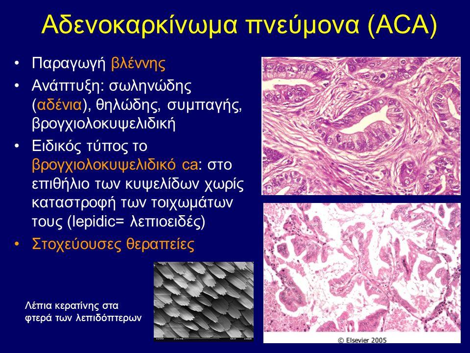 Αδενοκαρκίνωμα πνεύμονα (ACA) Παραγωγή βλέννης Ανάπτυξη: σωληνώδης (αδένια), θηλώδης, συμπαγής, βρογχιολοκυψελιδική Ειδικός τύπος το βρογχιολοκυψελιδι