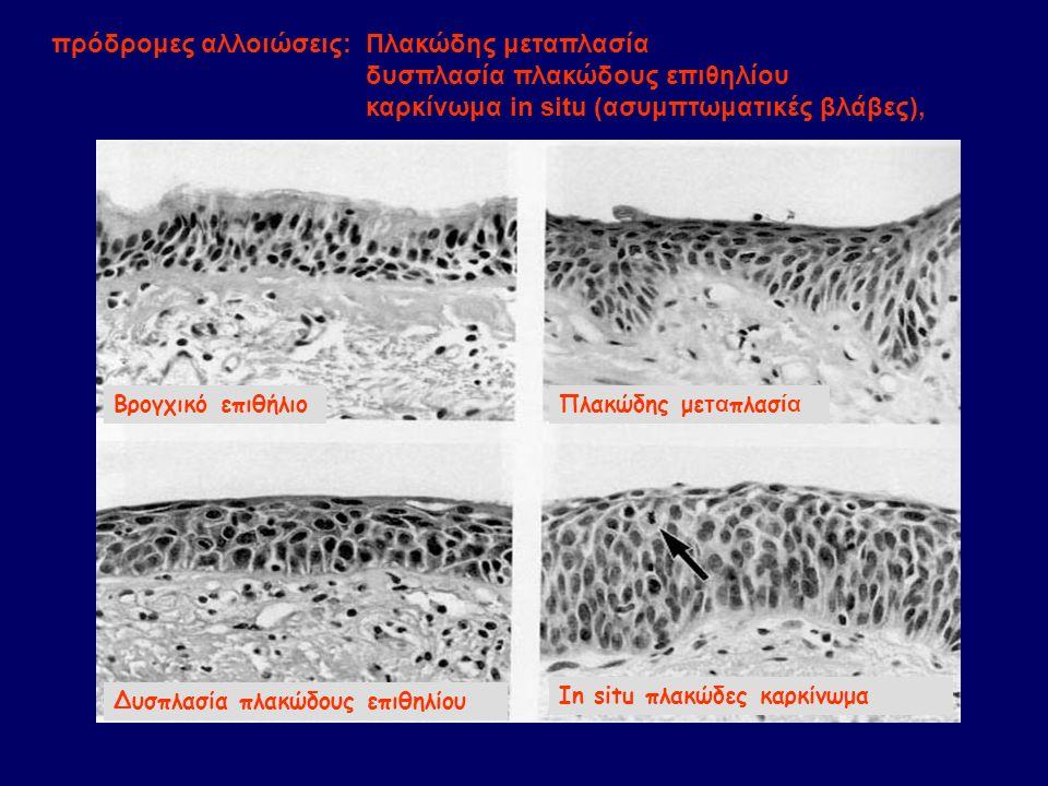 Βρογχικό επιθήλιοΠλακώδης μετ α πλασ ία Δυσπλασία πλακώδους επιθηλίου In situ πλακώδες καρκίνωμα πρόδρομες αλλοιώσεις: Πλακώδης μεταπλασία δυσπλασία π