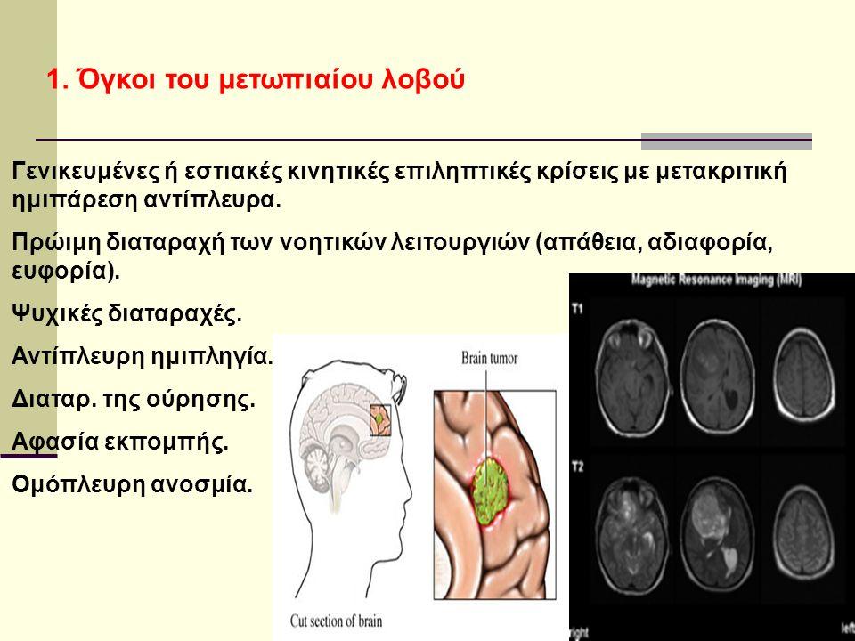 1. Όγκοι του μετωπιαίου λοβού Γενικευμένες ή εστιακές κινητικές επιληπτικές κρίσεις με μετακριτική ημιπάρεση αντίπλευρα. Πρώιμη διαταραχή των νοητικών