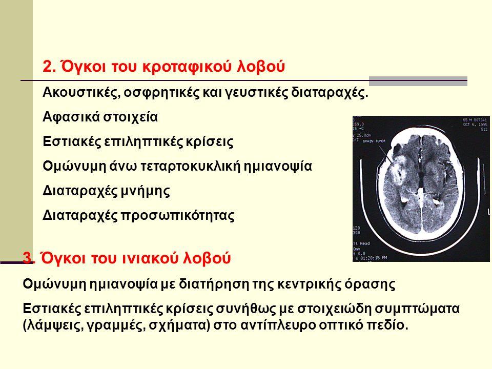 2. Όγκοι του κροταφικού λοβού Ακουστικές, οσφρητικές και γευστικές διαταραχές.