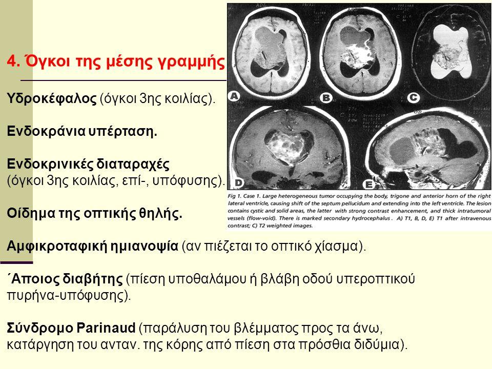 4. Όγκοι της μέσης γραμμής Υδροκέφαλος (όγκοι 3ης κοιλίας).