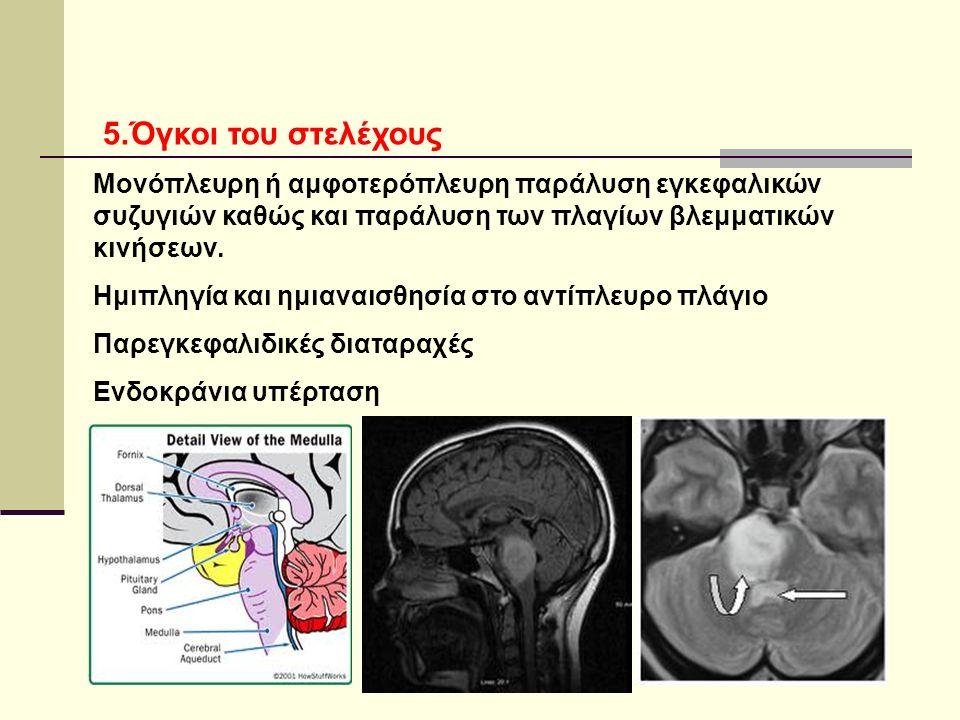 5.Όγκοι του στελέχους Μονόπλευρη ή αμφοτερόπλευρη παράλυση εγκεφαλικών συζυγιών καθώς και παράλυση των πλαγίων βλεμματικών κινήσεων.