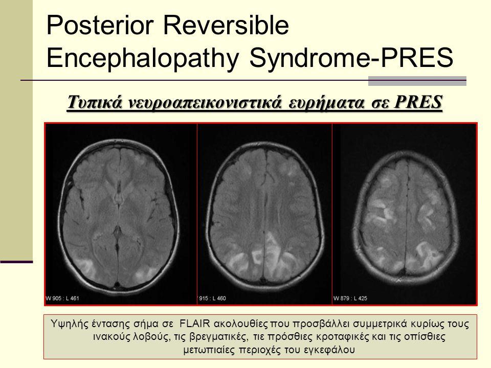 Posterior Reversible Encephalopathy Syndrome-PRES Υψηλής έντασης σήμα σε FLAIR ακολουθίες που προσβάλλει συμμετρικά κυρίως τους ινακούς λοβούς, τις βρεγματικές, τιε πρόσθιες κροταφικές και τις οπίσθιες μετωπιαίες περιοχές του εγκεφάλου Τυπικά νευροαπεικονιστικά ευρήματα σε PRES