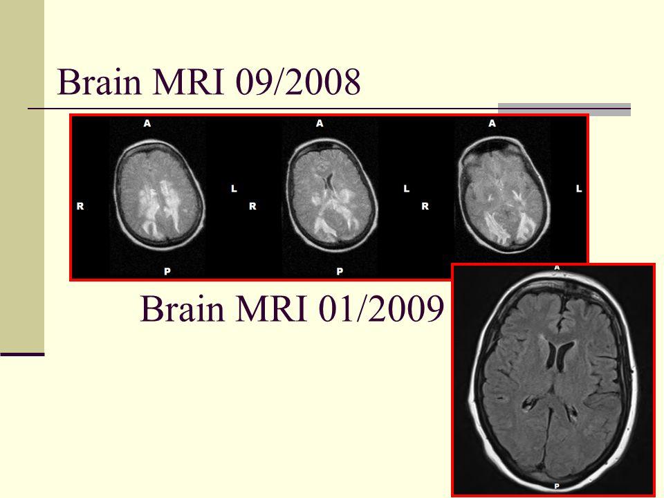 Brain MRI 09/2008 Brain MRI 01/2009