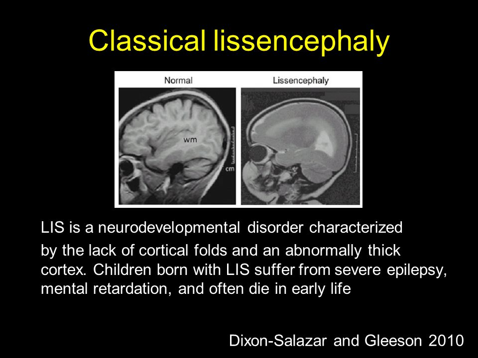 Classical lissencephaly LIS is a neurodevelopmental disorder characterized by the lack of cortical folds and an abnormally thick cortex.