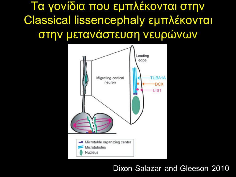 Τα γονίδια που εμπλέκονται στην Classical lissencephaly εμπλέκονται στην μετανάστευση νευρώνων Dixon-Salazar and Gleeson 2010