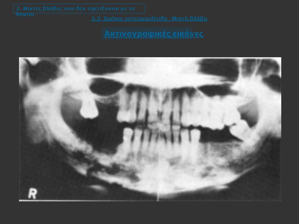 2.2. Χρόνια οστεομυελίτιδα –Μικτή βλάβη 2.