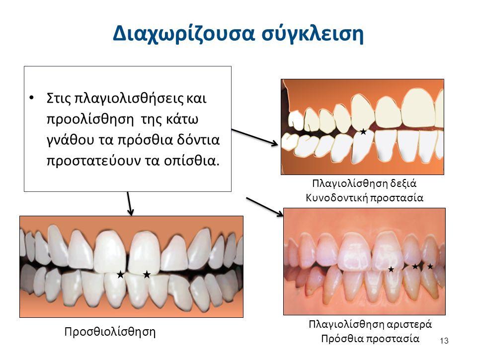 Στις πλαγιολισθήσεις και προολίσθηση της κάτω γνάθου τα πρόσθια δόντια προστατεύουν τα οπίσθια.