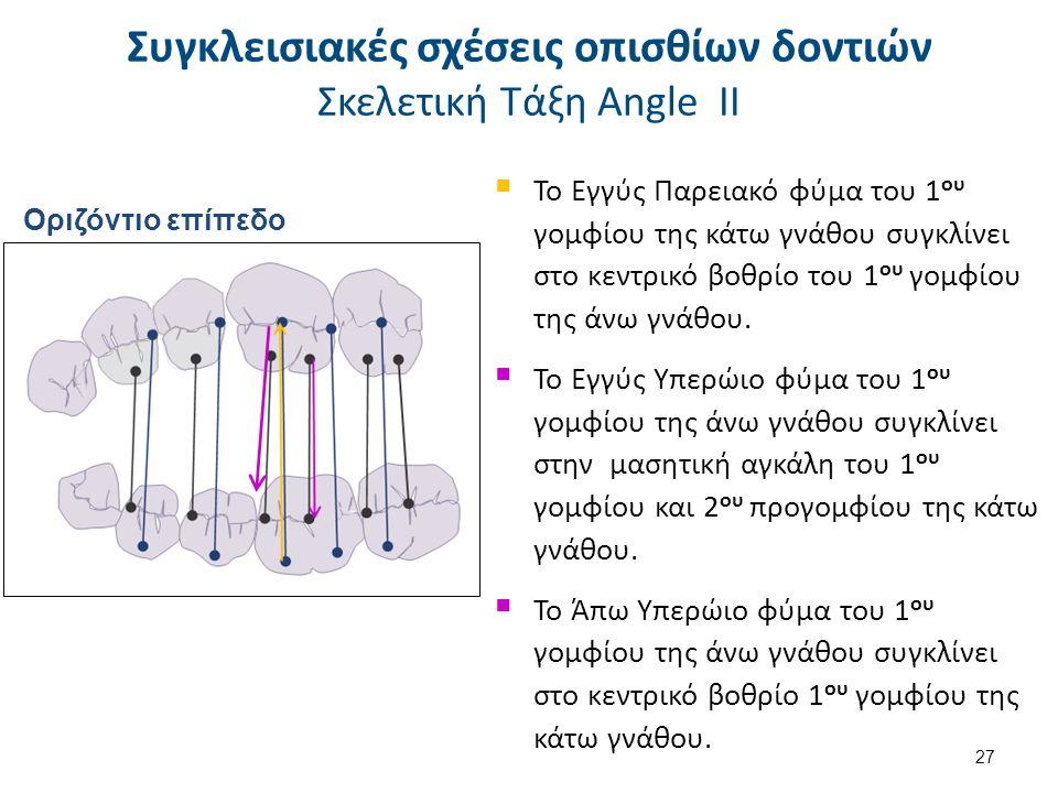  Το Εγγύς Παρειακό φύμα του 1 ου γομφίου της κάτω γνάθου συγκλίνει στο κεντρικό βοθρίο του 1 ου γομφίου της άνω γνάθου.