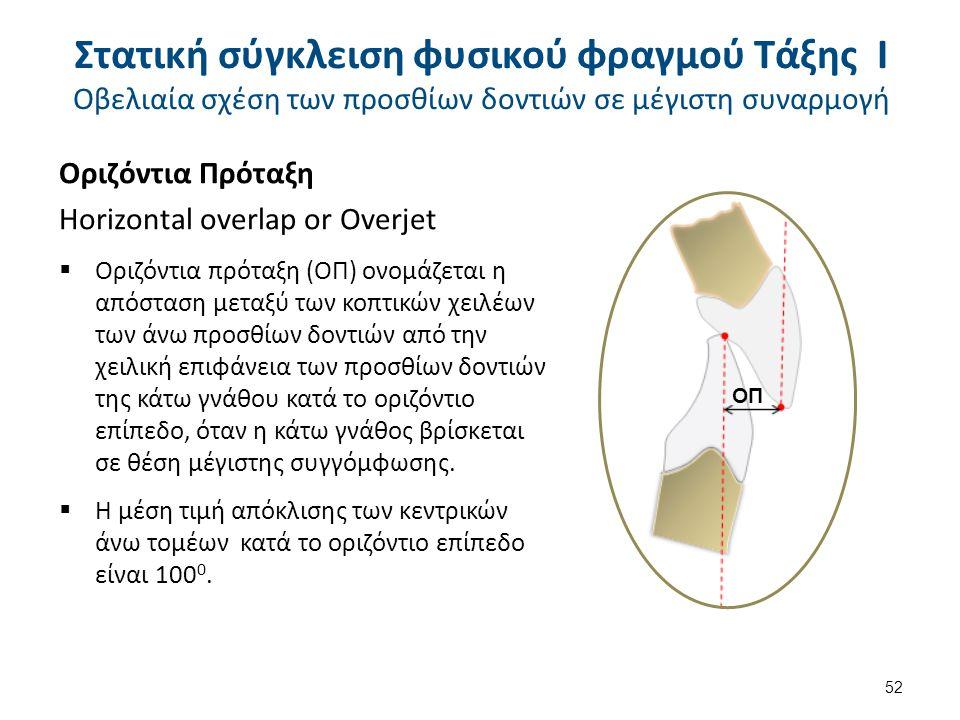 Οριζόντια Πρόταξη Horizontal overlap or Overjet  Οριζόντια πρόταξη (ΟΠ) ονομάζεται η απόσταση μεταξύ των κοπτικών χειλέων των άνω προσθίων δοντιών από την χειλική επιφάνεια των προσθίων δοντιών της κάτω γνάθου κατά το οριζόντιο επίπεδο, όταν η κάτω γνάθος βρίσκεται σε θέση μέγιστης συγγόμφωσης.