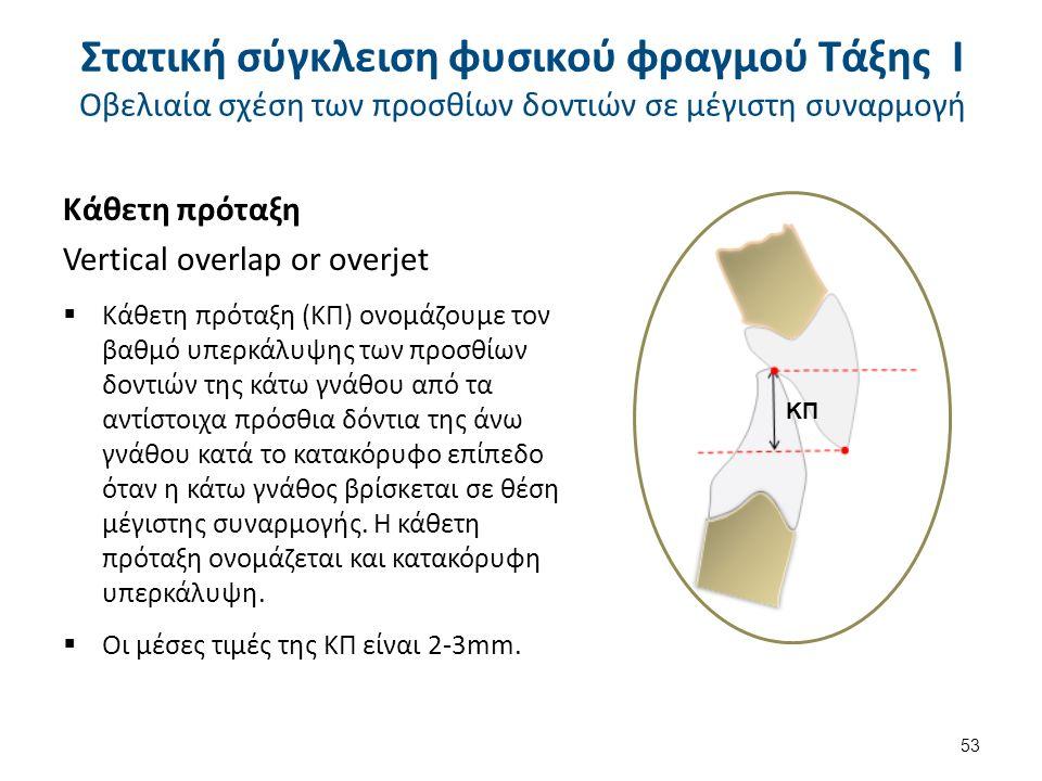 Κάθετη πρόταξη Vertical overlap or overjet  Κάθετη πρόταξη (ΚΠ) ονομάζουμε τον βαθμό υπερκάλυψης των προσθίων δοντιών της κάτω γνάθου από τα αντίστοιχα πρόσθια δόντια της άνω γνάθου κατά το κατακόρυφο επίπεδο όταν η κάτω γνάθος βρίσκεται σε θέση μέγιστης συναρμογής.
