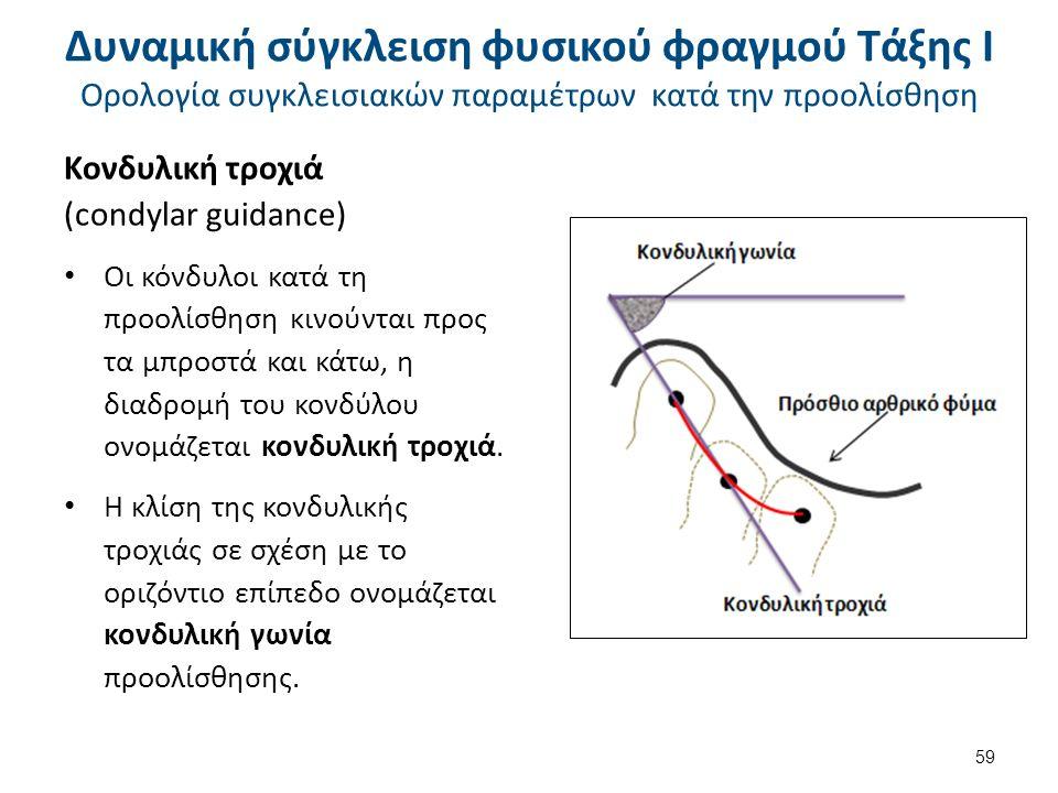 Κονδυλική τροχιά (condylar guidance) Οι κόνδυλοι κατά τη προολίσθηση κινούνται προς τα μπροστά και κάτω, η διαδρομή του κονδύλου ονομάζεται κονδυλική τροχιά.