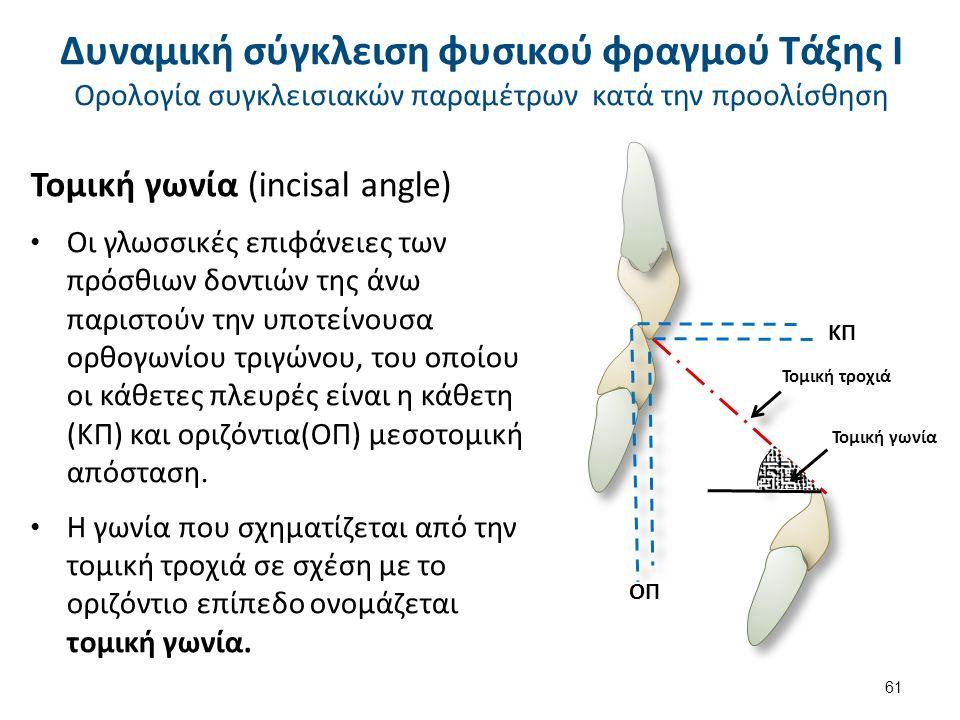 Τομική γωνία (incisal angle) Οι γλωσσικές επιφάνειες των πρόσθιων δοντιών της άνω παριστούν την υποτείνουσα ορθογωνίου τριγώνου, του οποίου οι κάθετες πλευρές είναι η κάθετη (ΚΠ) και οριζόντια(ΟΠ) μεσοτομική απόσταση.