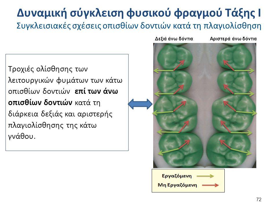 Τροχιές ολίσθησης των λειτουργικών φυμάτων των κάτω οπισθίων δοντιών επί των άνω οπισθίων δοντιών κατά τη διάρκεια δεξιάς και αριστερής πλαγιολίσθησης της κάτω γνάθου.