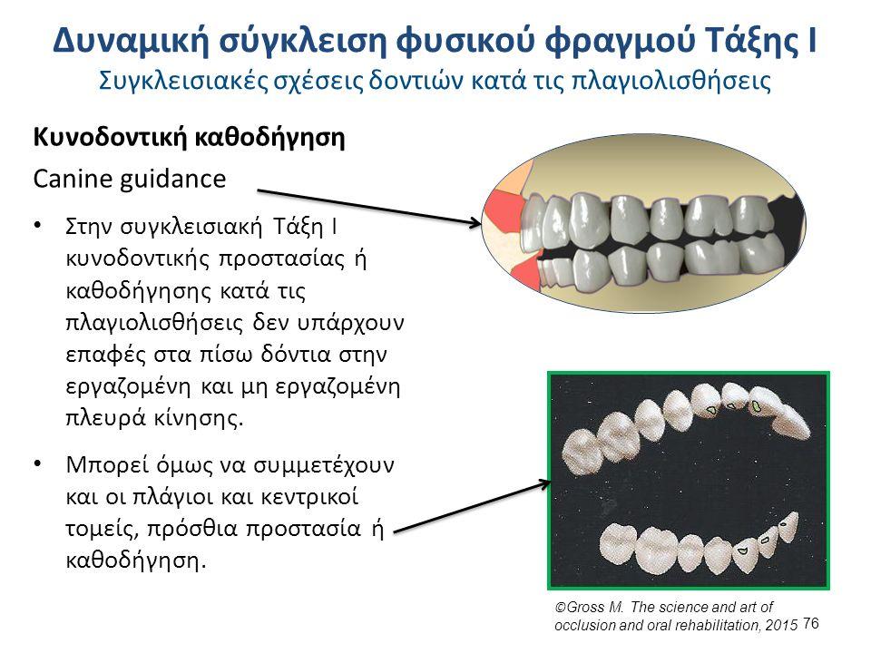 Κυνοδοντική καθοδήγηση Canine guidance Στην συγκλεισιακή Τάξη Ι κυνοδοντικής προστασίας ή καθοδήγησης κατά τις πλαγιολισθήσεις δεν υπάρχουν επαφές στα πίσω δόντια στην εργαζομένη και μη εργαζομένη πλευρά κίνησης.