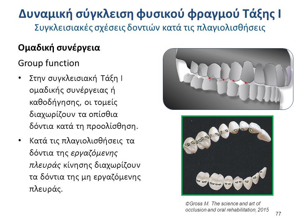Ομαδική συνέργεια Group function Στην συγκλεισιακή Τάξη Ι ομαδικής συνέργειας ή καθοδήγησης, οι τομείς διαχωρίζουν τα οπίσθια δόντια κατά τη προολίσθηση.