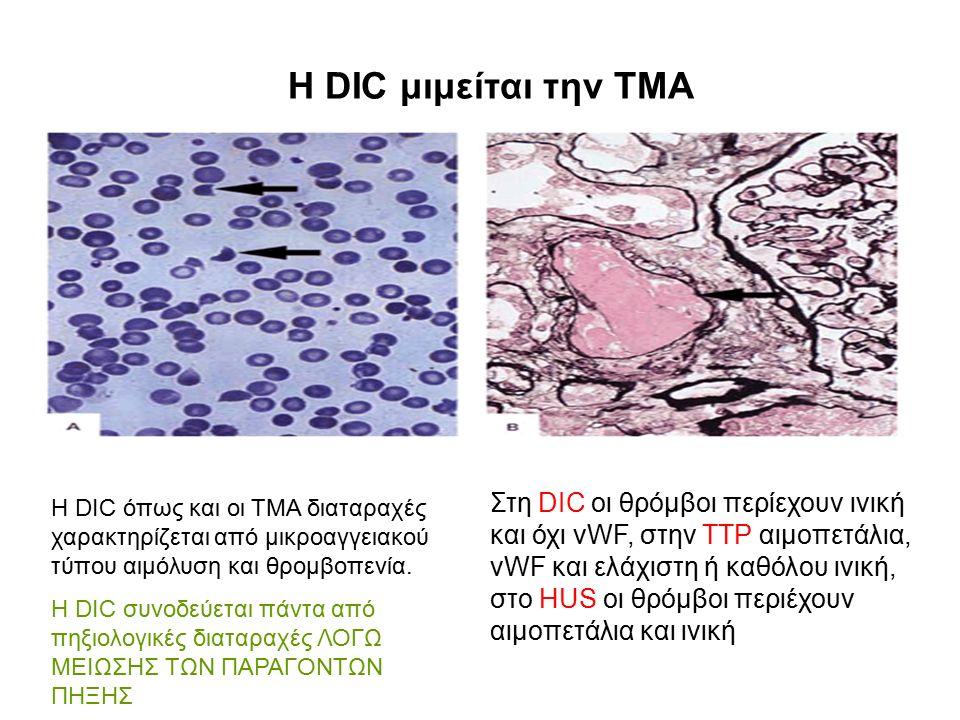Η DIC μιμείται την ΤΜΑ Στη DIC οι θρόμβοι περίεχουν ινική και όχι vWF, στην TTP αιμοπετάλια, vWF και ελάχιστη ή καθόλου ινική, στο HUS οι θρόμβοι περιέχουν αιμοπετάλια και ινική Η DIC όπως και οι TMA διαταραχές χαρακτηρίζεται από μικροαγγειακού τύπου αιμόλυση και θρομβοπενία.