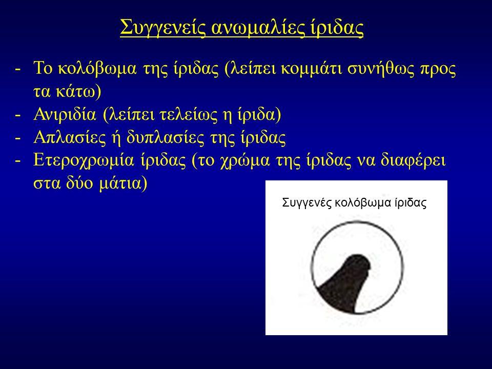 Συγγενείς ανωμαλίες ίριδας -Το κολόβωμα της ίριδας (λείπει κομμάτι συνήθως προς τα κάτω) -Ανιριδία (λείπει τελείως η ίριδα) -Απλασίες ή δυπλασίες της ίριδας -Ετεροχρωμία ίριδας (το χρώμα της ίριδας να διαφέρει στα δύο μάτια) Συγγενές κολόβωμα ίριδας