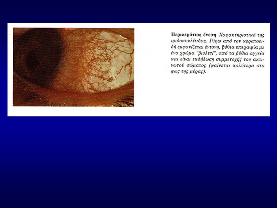 Ιρίτιδες ή ιριδοκυκλίτιδες Κλινικά σημεία και συμπτώματα: -Το υδατοειδές υγρό γίνεται θολό, επειδή κινούνται μέσα του φλεγμονώδη στοιχεία.
